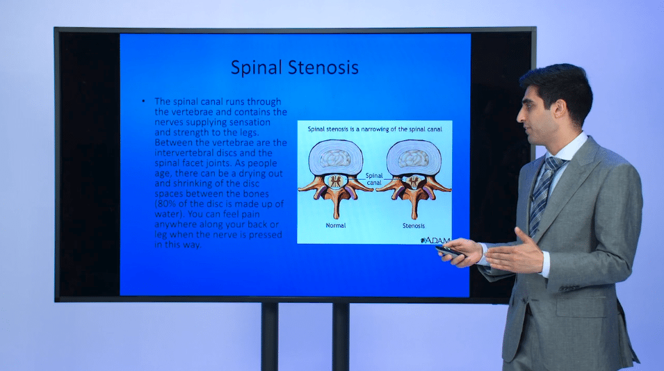 Spinal Stenosis Presentation by Dr. Armaghani