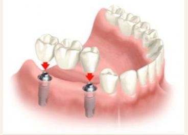 Prosthodontic Associates image 1