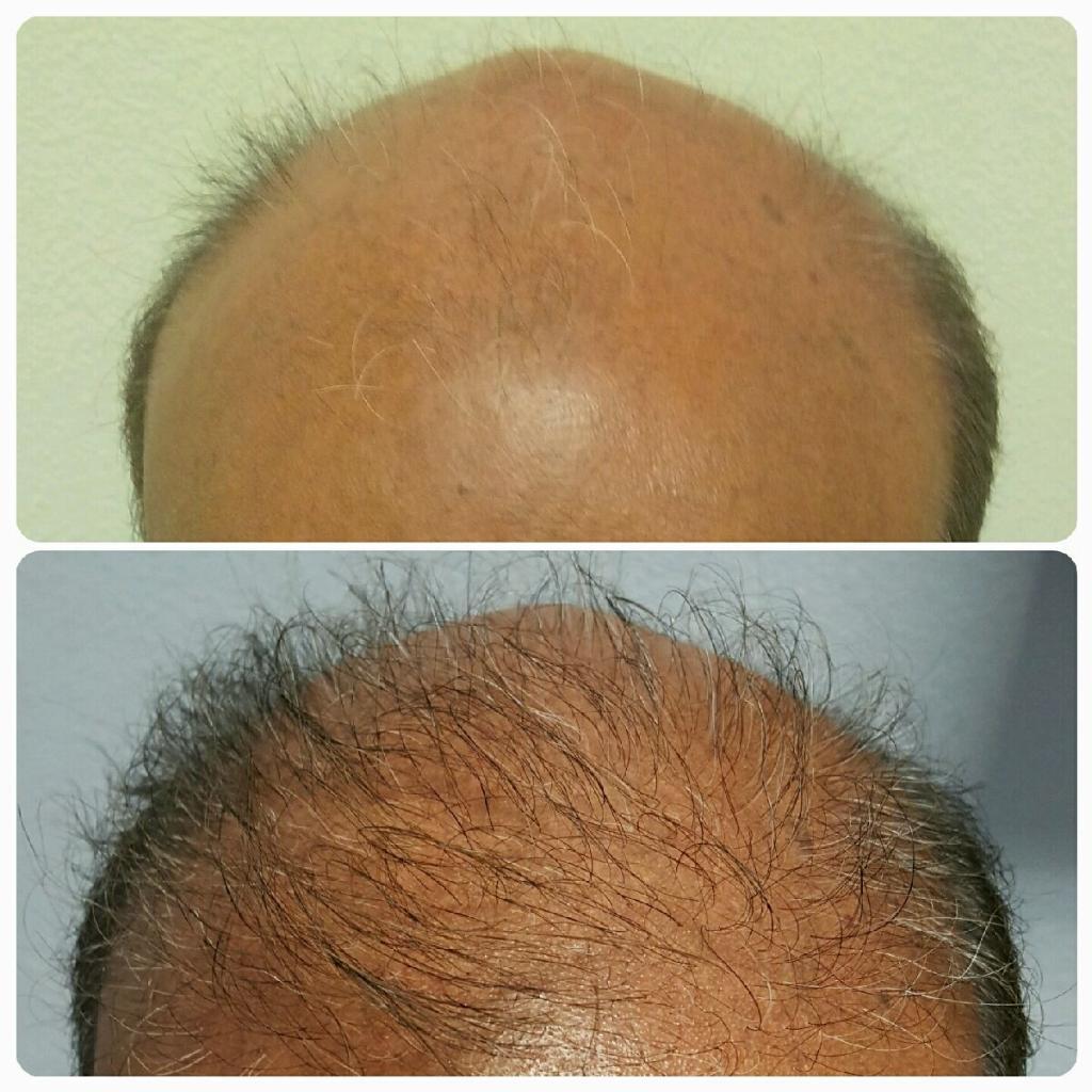 Orlando Hair Clinic image 5