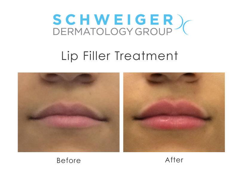 Schweiger Dermatology Group - Yonkers image 2