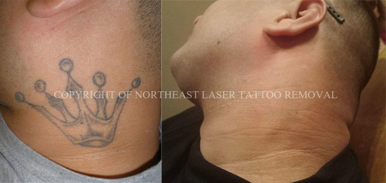 Benchmark Tattoo & Fade Away Laser Tattoo Removal image 8