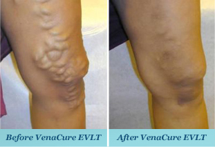 Vein Center of Orange County image 0