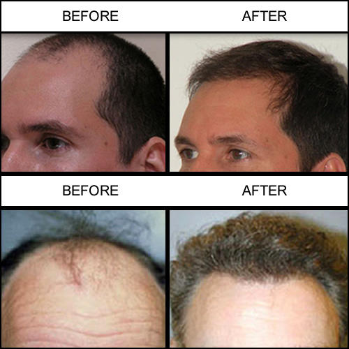 Jacksonville Hair Restoration Center image 2