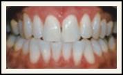 Darshan P. Patel, DDS, DPh, PLLC Esthetique Dental image 0