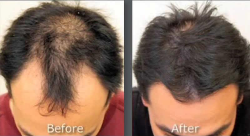 Orlando Hair Clinic image 2