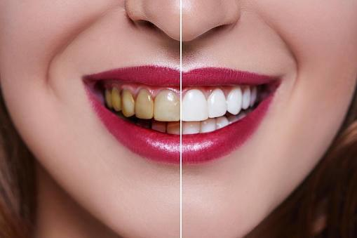 Eastside Dental Associates image 15