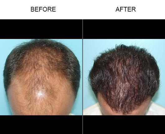 Tampa Hair Restoration Center image 3