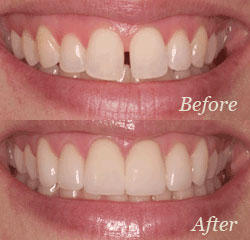 Cielo Dental & Orthodontics image 7