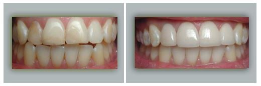 Lake Forest Dental Health Care image 0