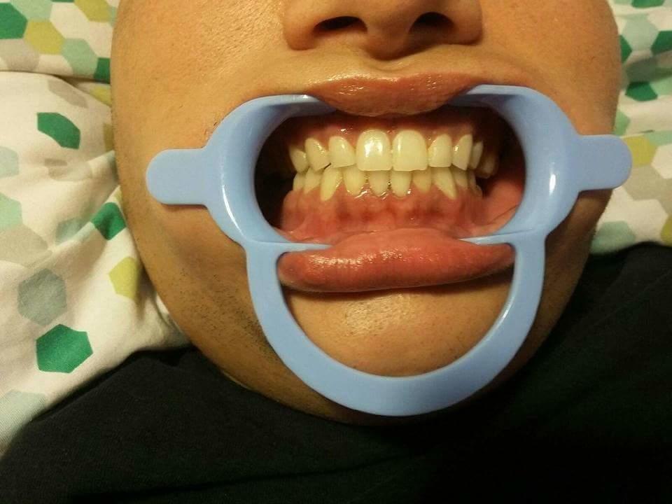 X&J SMILES Mobile Teeth Whitening image 1