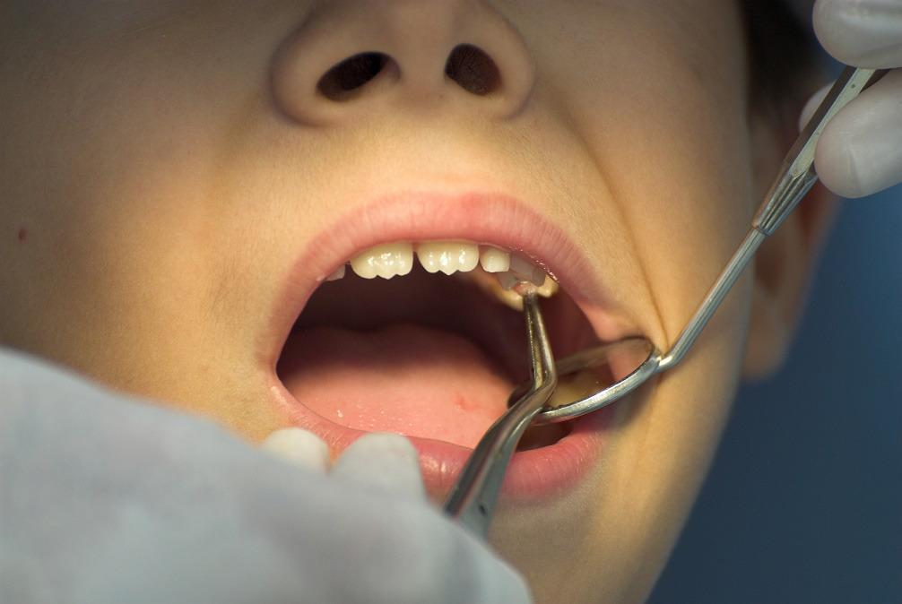 Giggles General Dentistry For Kids image 6
