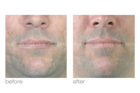 Skin Smart image 1