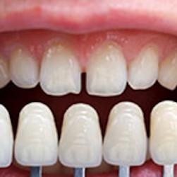 Lantern Dental image 4