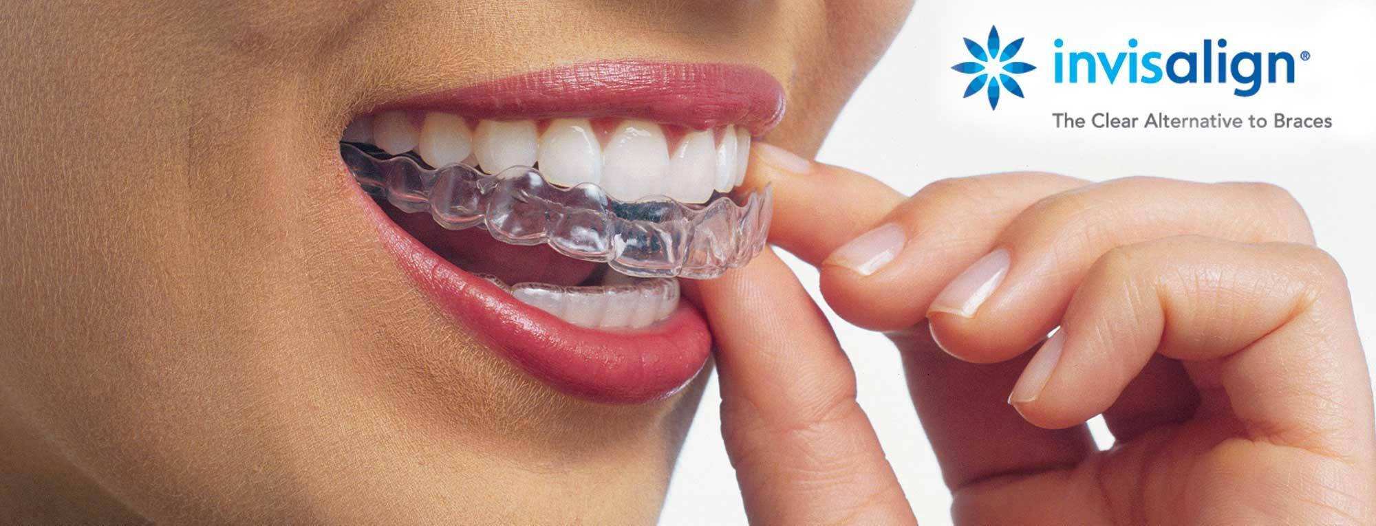 Stone Dental Group-SE Chicago Dentistry image 6