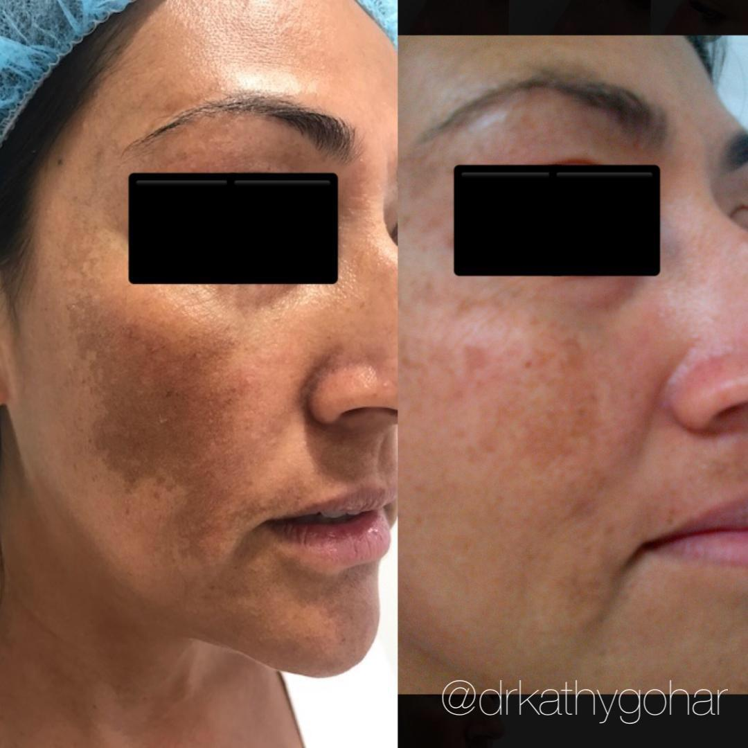 Beverly Hills Cosmetic & Laser Center: Kathy Gohar, M.D. image 10