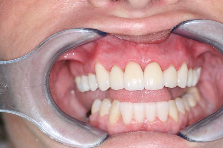 Murrieta Smiles Dentistry image 5