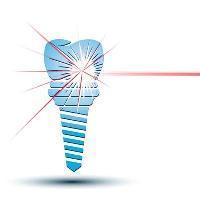 McCawley Center for Laser Periodontics & Implants