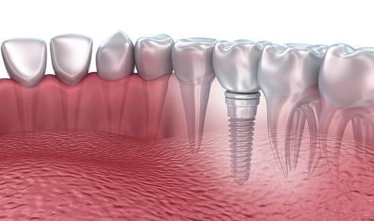 Eastside Dental Associates image 7