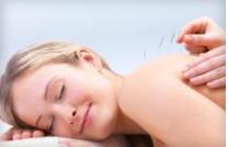 Serene Balance Acupuncture image 1