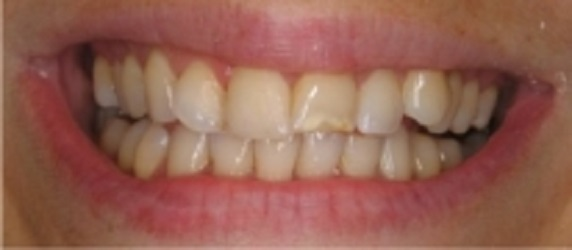 Glenlake Dental Care image 8