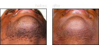 Cosmetic Laser and Beauty Spa image 4
