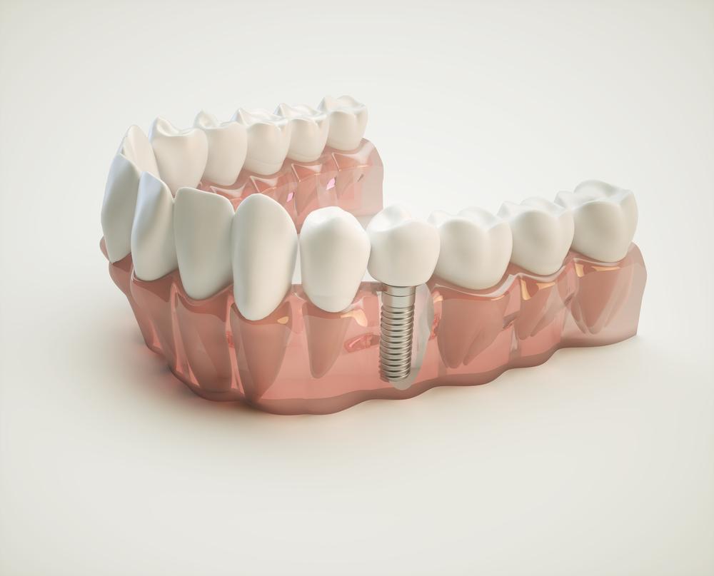 Chestnut Hill Dental Associates image 10