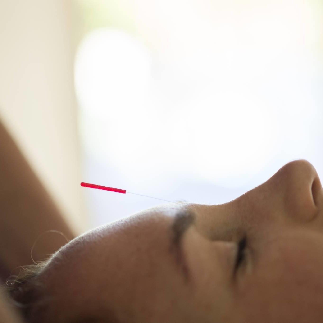 Clasique Acupuncture & Pilates Studio image 1