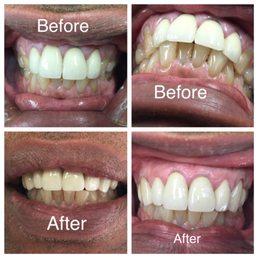 RJ Dental of Teaneck image 3