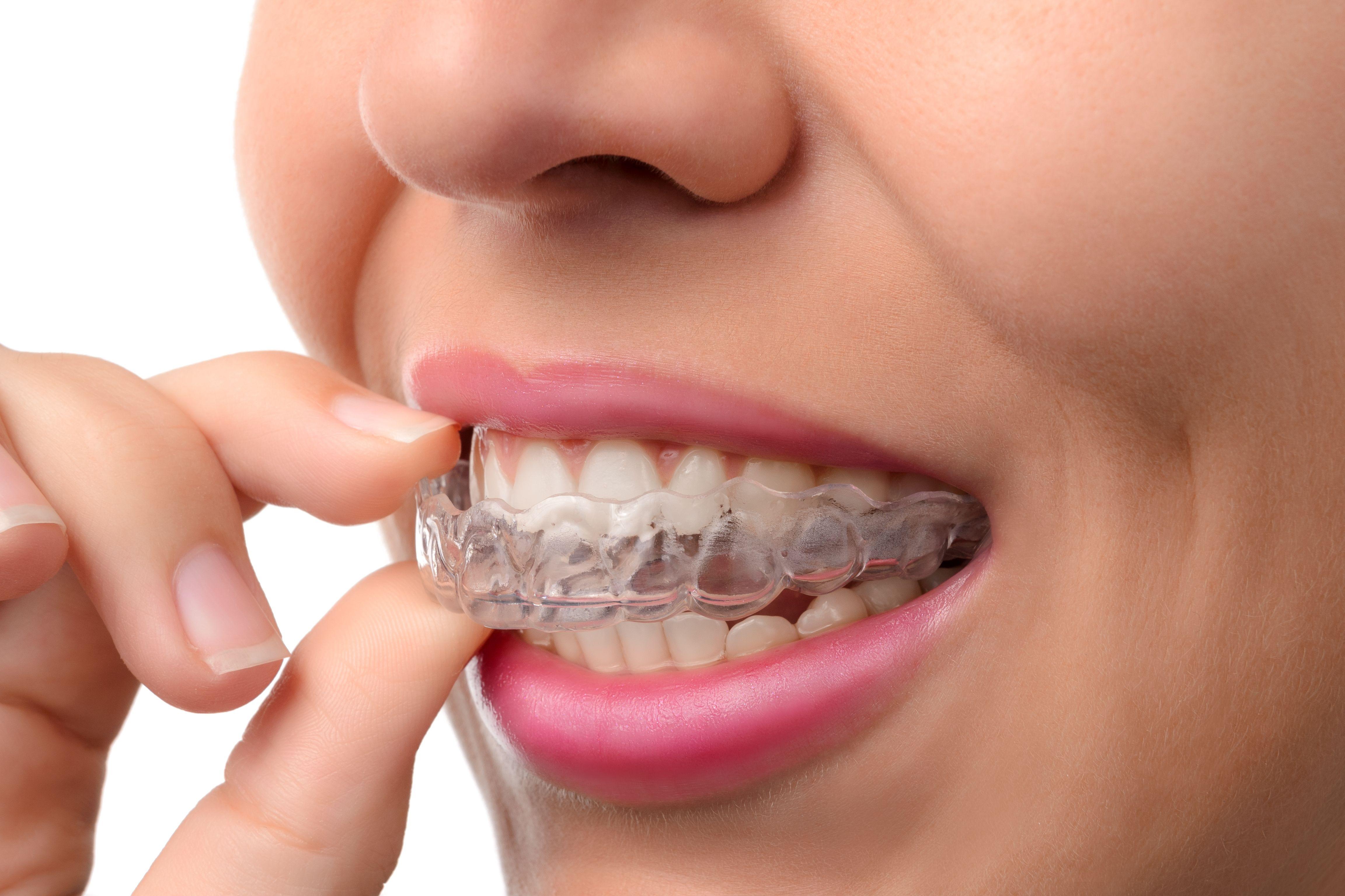 Irving Orthodontics image 8