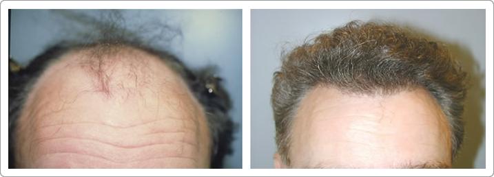 Hair Transplant Center NYC image 6