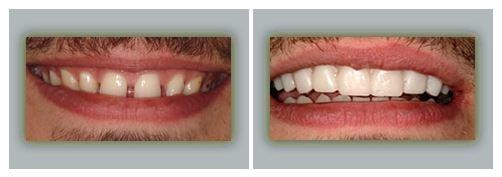Lake Forest Dental Health Care image 2