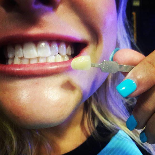 Radiant White Smiles Of Austin Cosmetic Teeth Whitening image 4