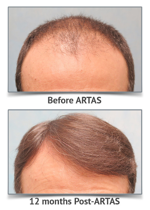 Vinings Hair Restoration Center image 0