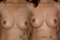 Cosmetic Surgery and Laser Center of El Paso image 5