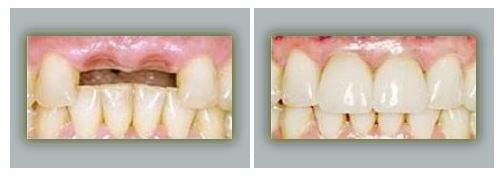 Lake Forest Dental Health Care image 3