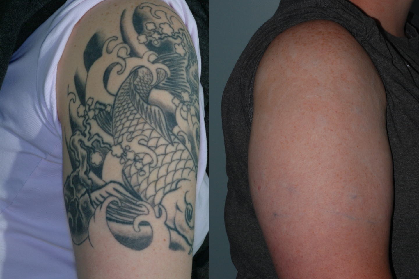Gateway aesthetic institute and laser center for Picosure tattoo removal maryland