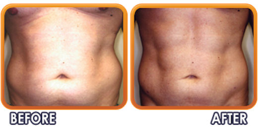 Palm Beach Plastic And Cosmetic Surgery image 7