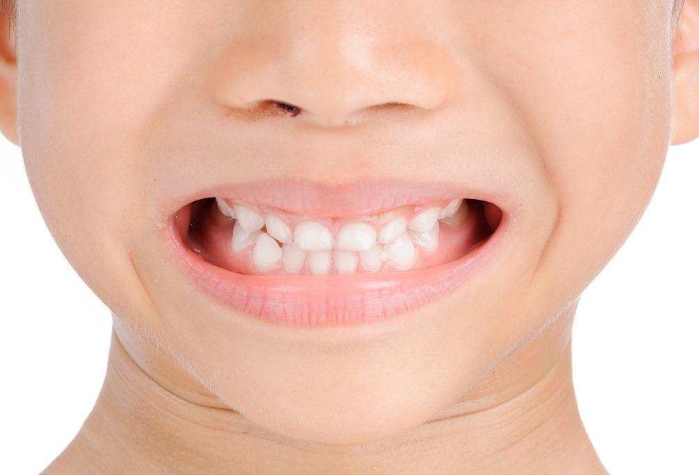 Giggles General Dentistry For Kids image 5