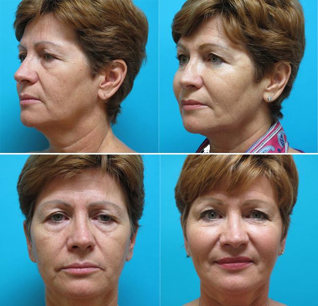 Dr. Todd Malan - Innovative Cosmetic Surgery image 2