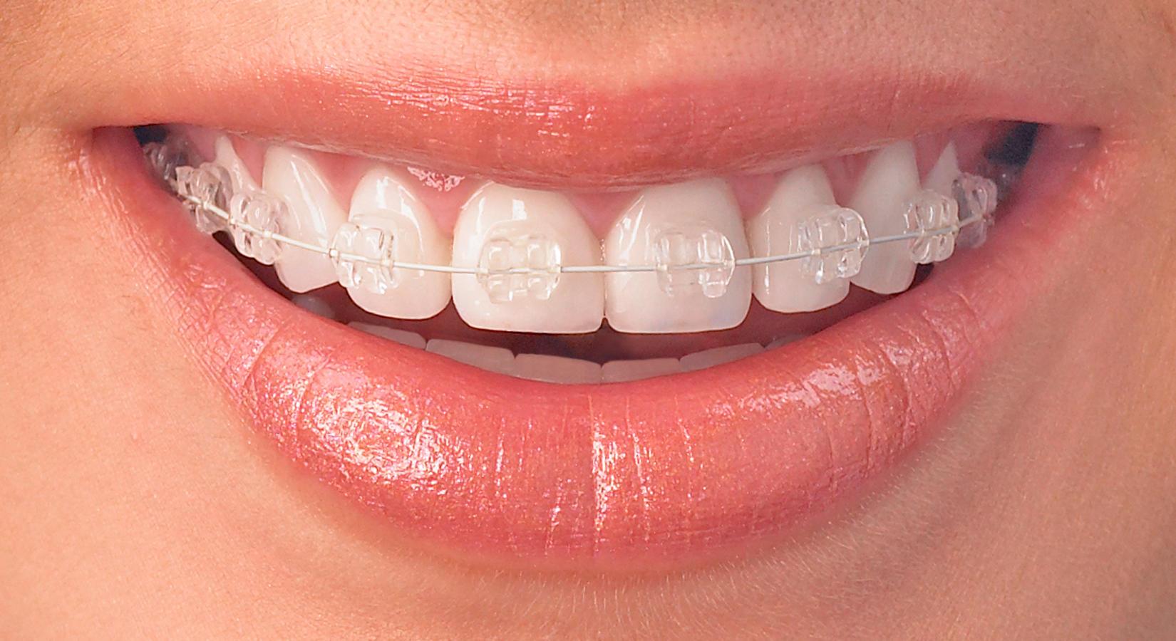 Mack and Hansen Orthodontics image 7