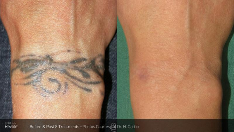 Laserase tattoo removal north vancouver bc ourbis for Vanish ink laser tattoo removal