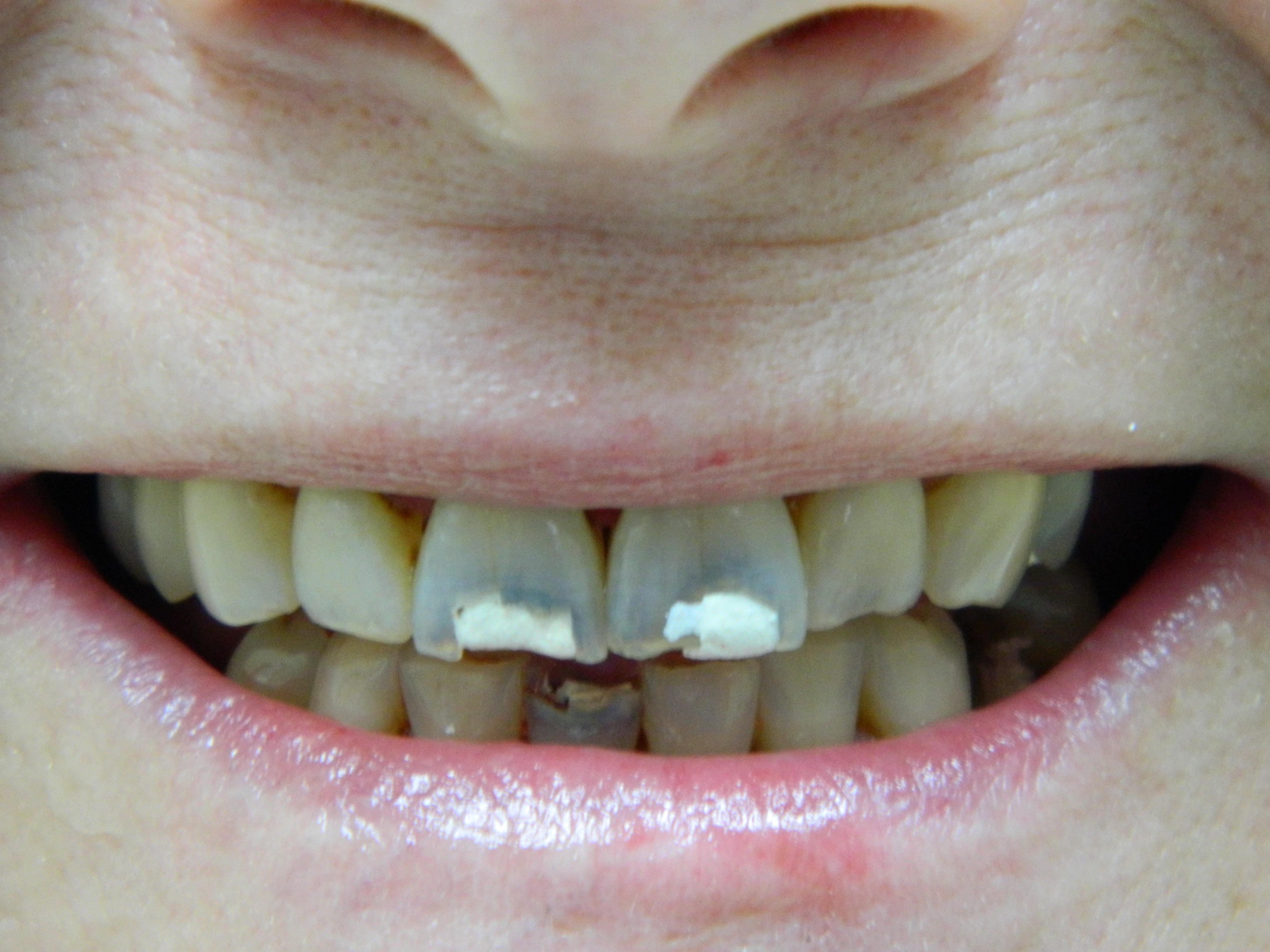 SMILE DENTAL CARE, DR. STEVEN NGUYEN image 0
