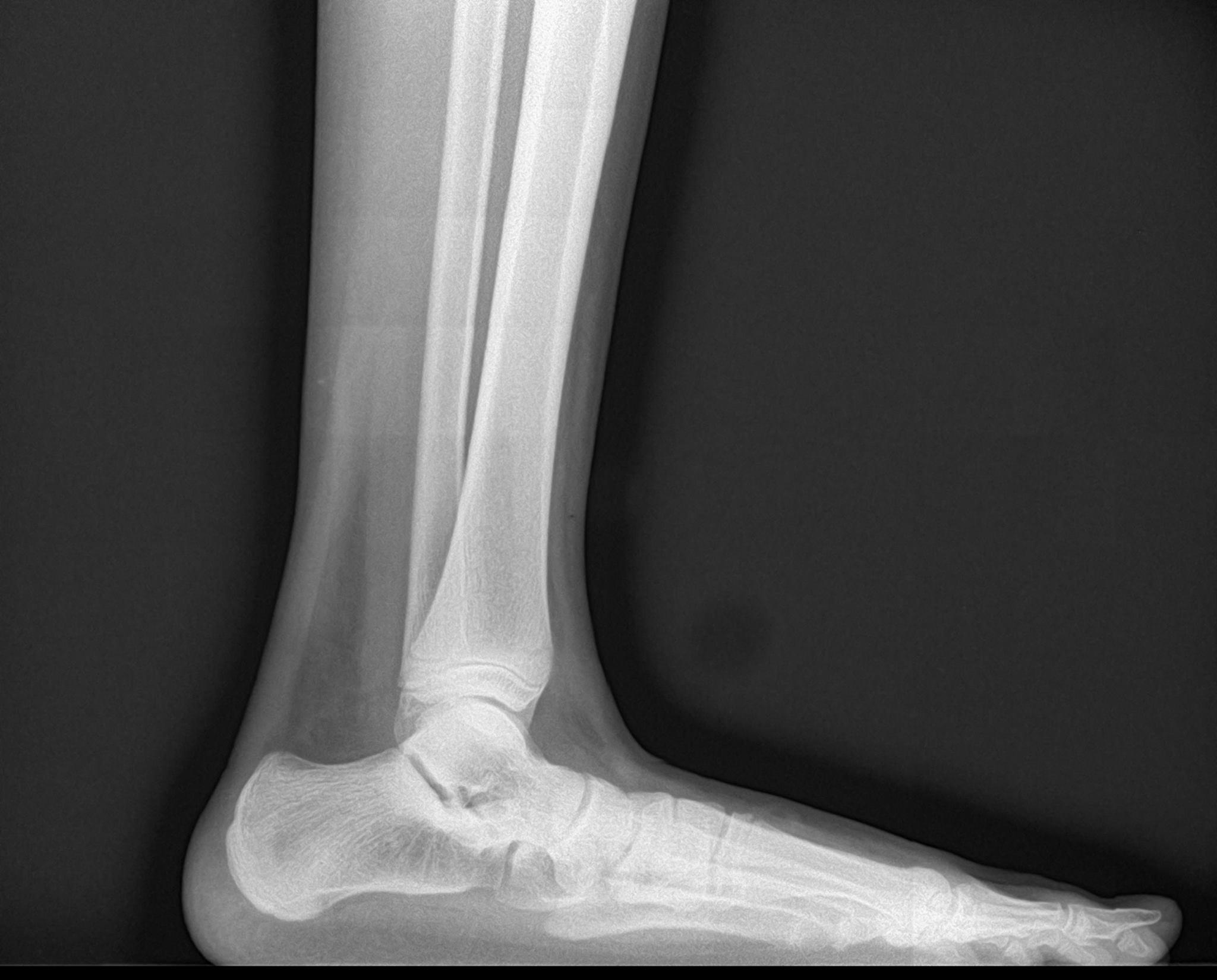 Elite Foot & Ankle Specialists image 4