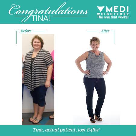 Medi-Weightloss image 5