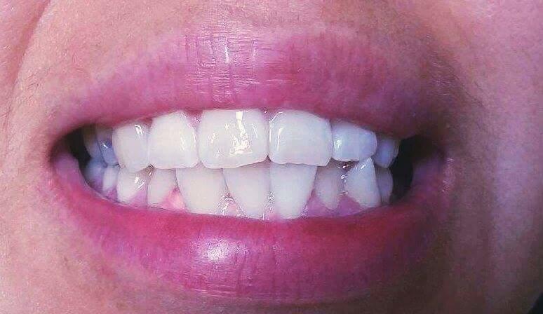 X&J SMILES Mobile Teeth Whitening image 3