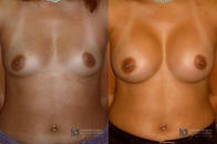 Cosmetic Surgery and Laser Center of El Paso image 6