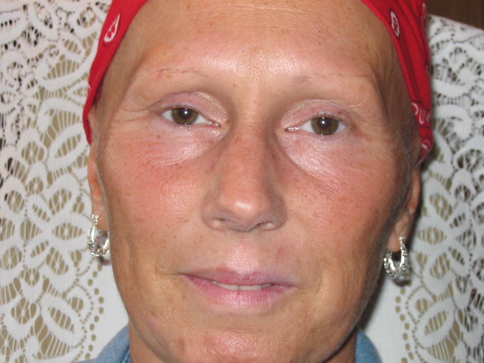 FACES by Marcia Renner BS, LPN, FAAM, CPCP Permanent Cosmetic Makeup image 9