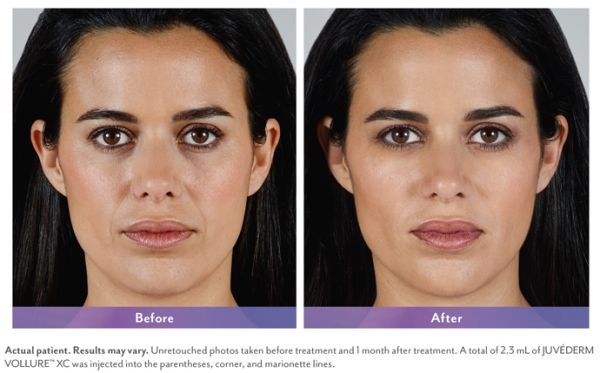 Skin Care and Laser Physicians of Beverly Hills image 14