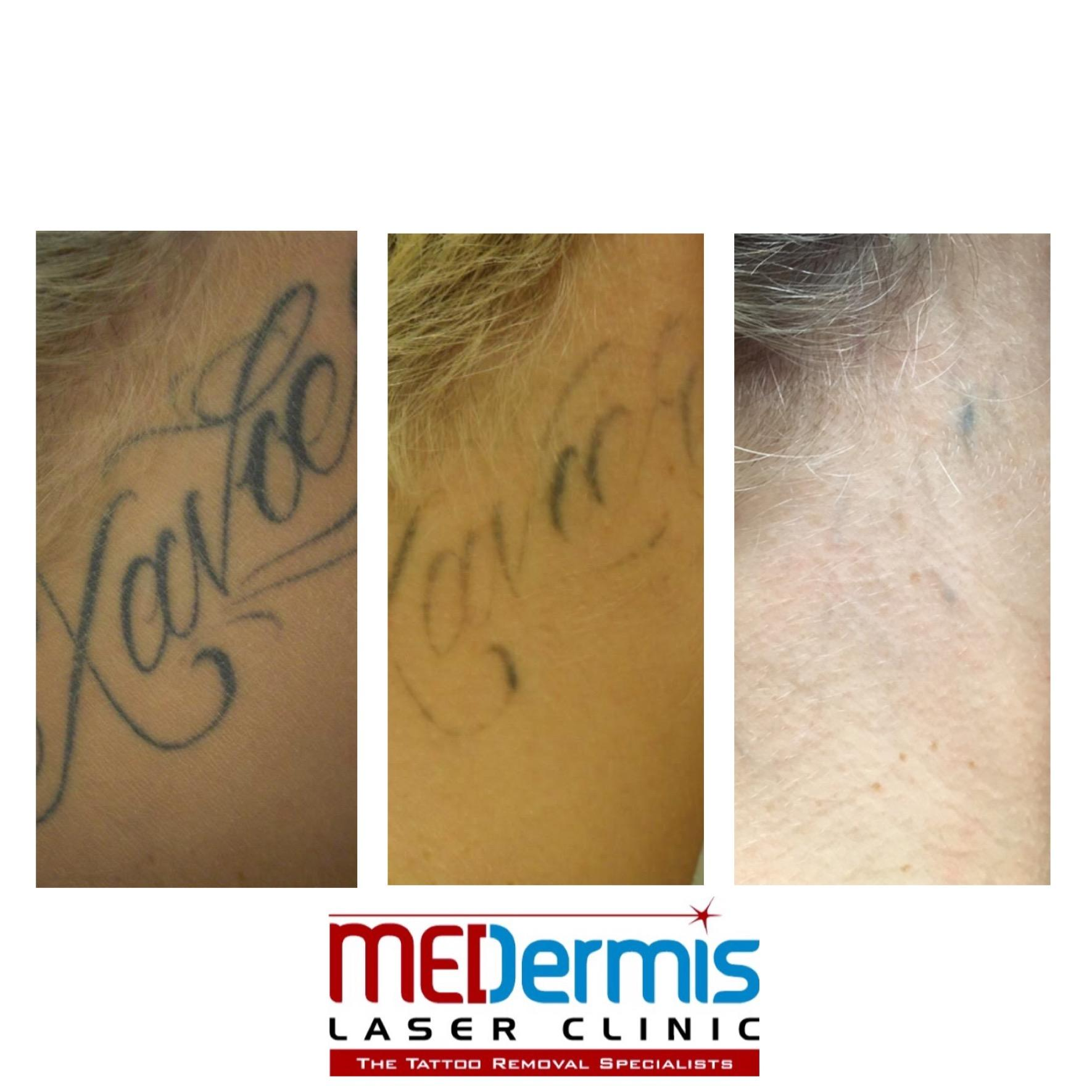 Medermis tattoo removal san antonio tx business directory for Tattoo removal business