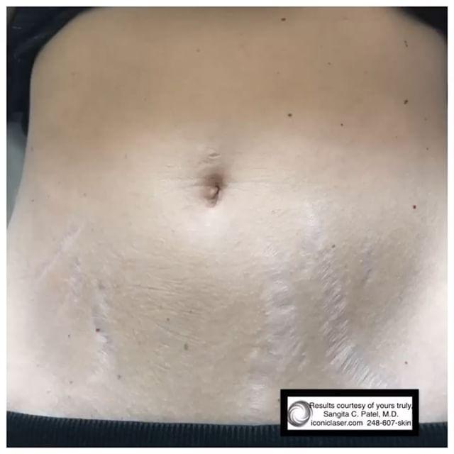 Iconic Medical Skin and Laser Center image 4